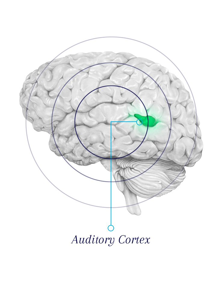 Tinnitus-Audio-Cortex-EN