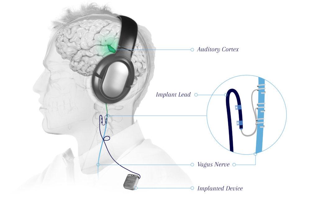 Tinnitus-VNS-graphic_v2
